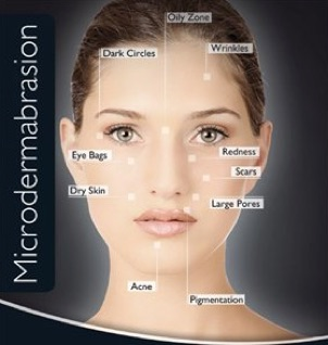 Click Here for Microdermabrasion